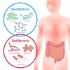 LGSリーキーガットシンドローム(腸管壁浸漏症候群)の原因と見分け方とおすすめされる栄養素